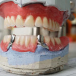 Cosmetic dentist in Boca Raton that can help me with dentures?