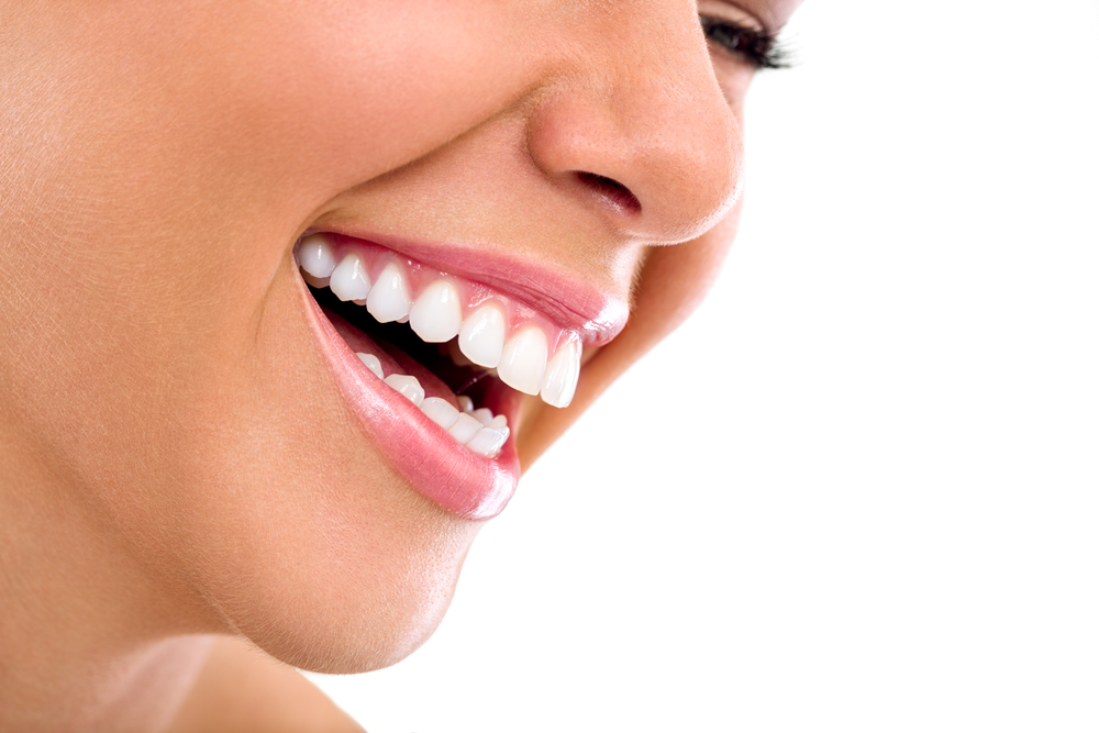 The best Teeth Whitening in Boca Raton?