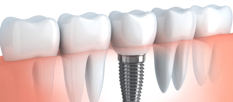 Where can I get Implants and Crowns in the Same Place in Boca Raton ?