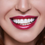 Am I a candidate for veneers in Boca Raton?