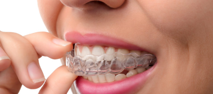 Where can I find Invisalign in Boca Raton?