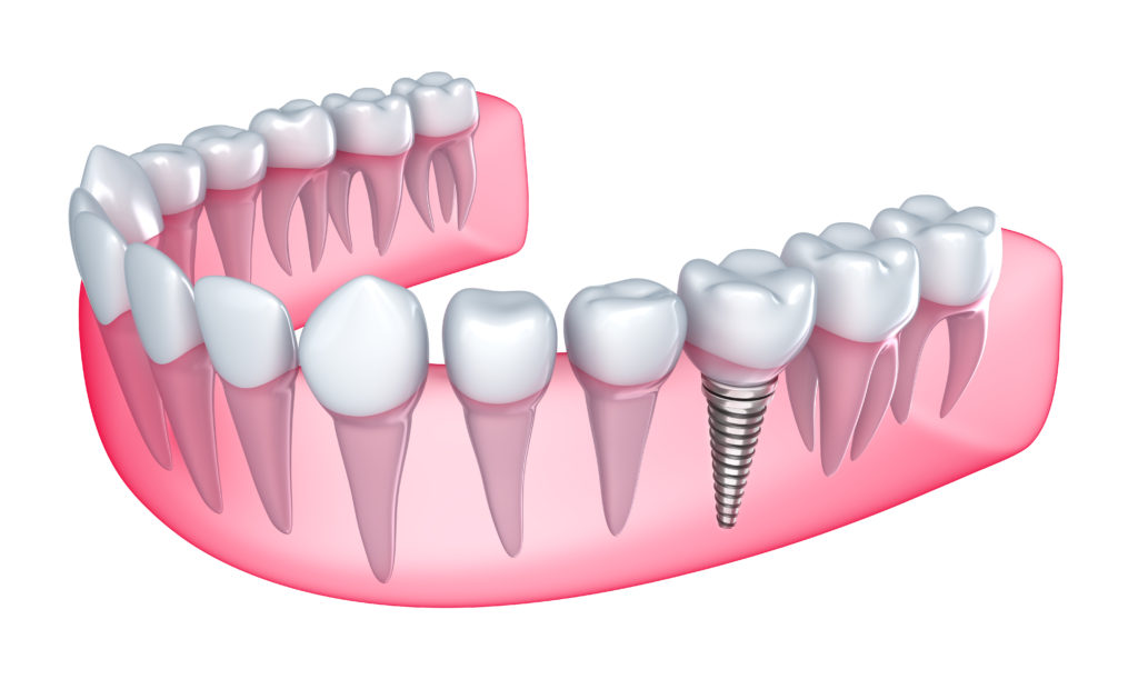 Who is the best dentist for Dental Implants in Boca Raton ?