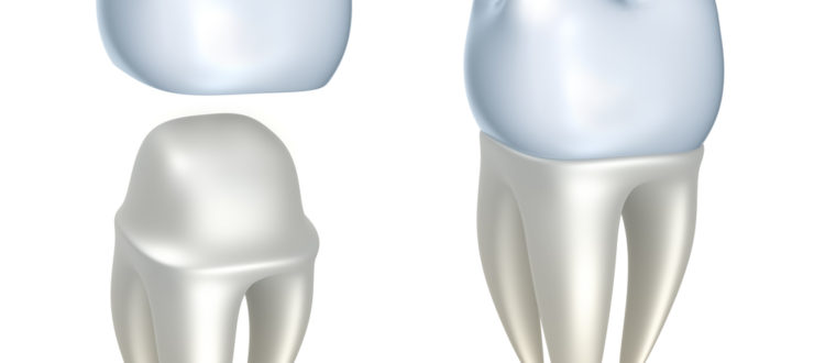 Who is the best dentist for Fast Crowns in Boca Raton ?