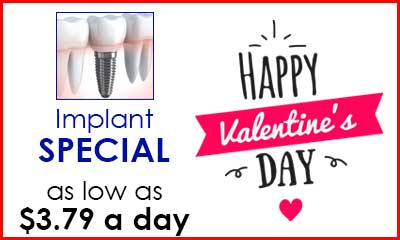Implant Special Offer