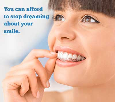 Sure Smile Clear Aligners