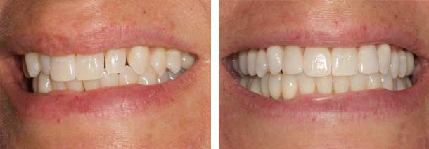 Peg Laterals and Whitening