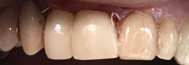 Same Day Implant Temporary Crown