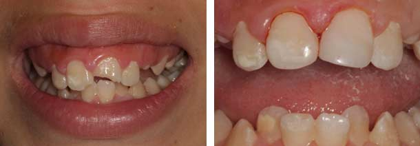 Composite Tooth Restoration