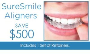 $500 off clear aligners