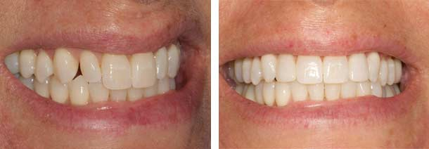 Peg lateral patient success before