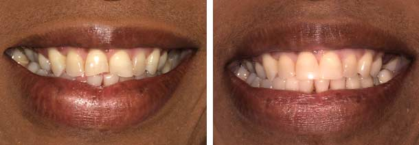 Patient bonded tooth before and after