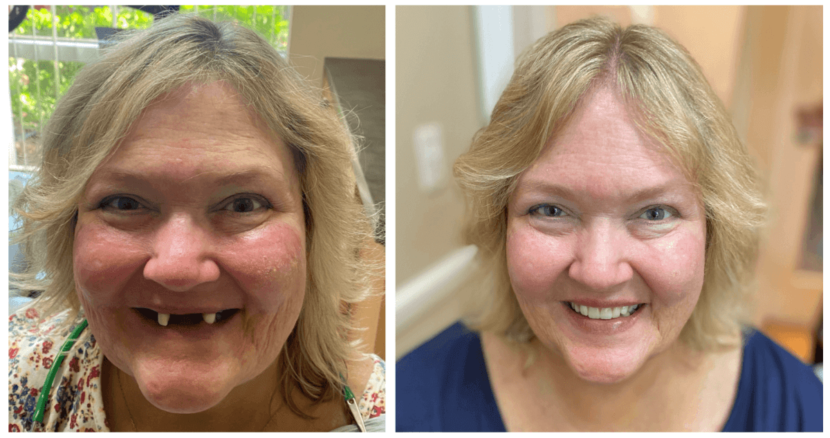 patient before and after photo of dentures